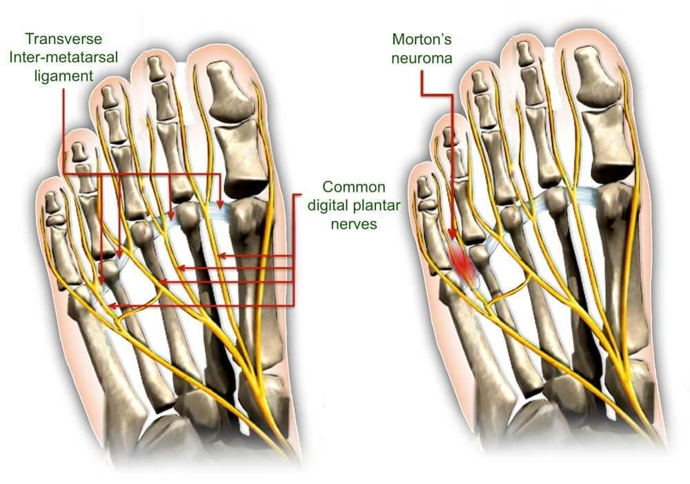 Is Morton\'s neuroma a nerve entrapment syndrome?