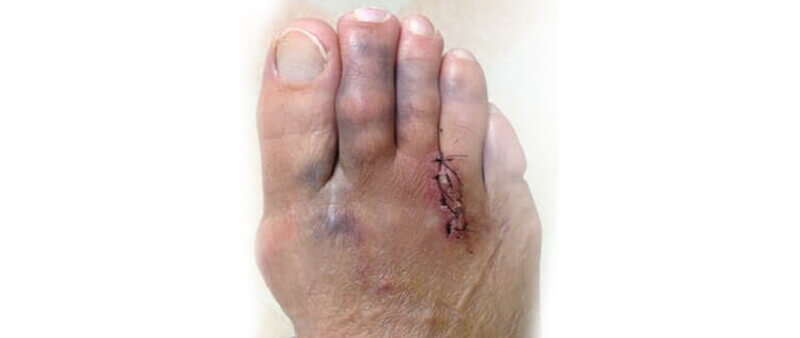 Pain after Morton's neuroma surgery? Failed Morton's surgery? Why?