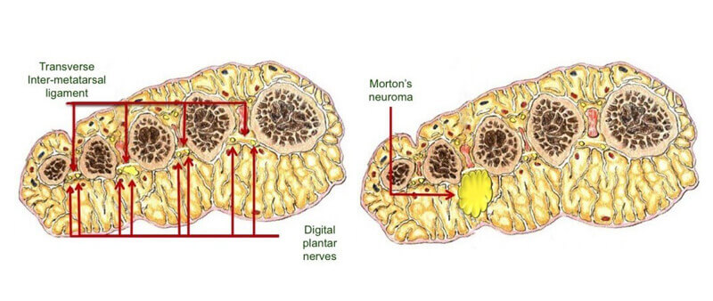 Facts about Morton's neuroma #1: Size of the neruoma