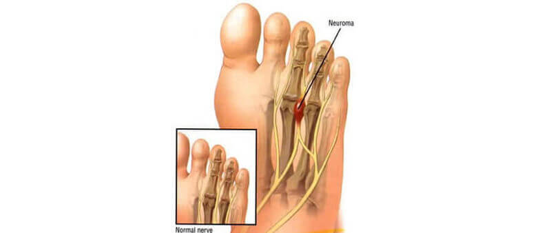 Facts about Morton's neuroma #2: Signs for the diagnosis of Morton's neuroma
