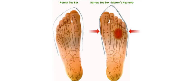 What are the common clinical signs for Morton's neuroma?