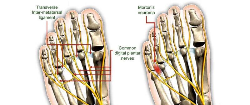 Is Morton's neuroma a nerve entrapment syndrome?