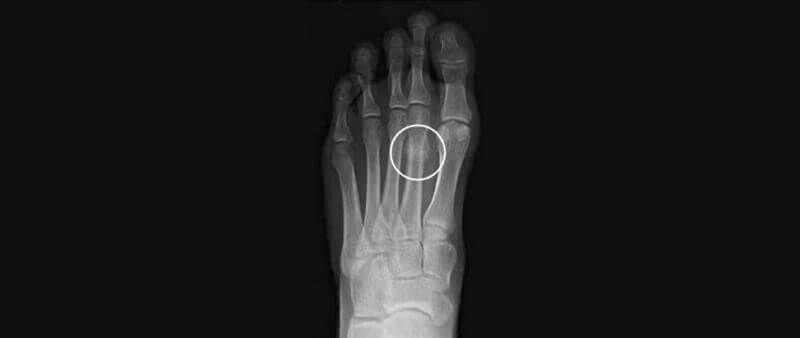 Stress Fractures of the Foot