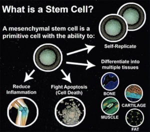 Stem Cell Therapy for Morton's Neuroma - Is it right for you?