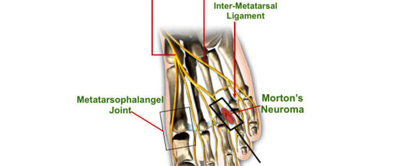 What causes Metatarsophalangeal (MTP) Joint Pain?