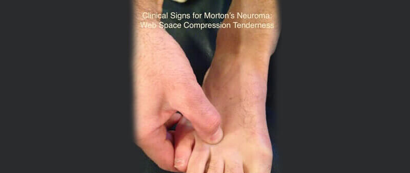 Mortons neuroma MRI – Clinical vs. Radiological Diagnosis