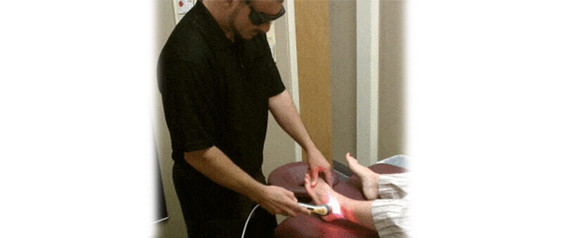 Low Level Laser Therapy for Morton's neuroma