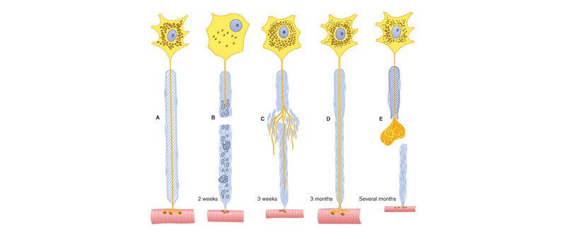 Morton's neuroma surgery, stump neuroma and Wallerian degeneration