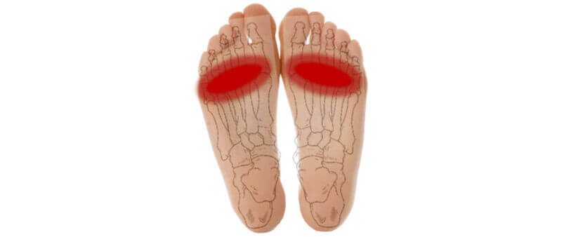 Bilateral Morton's neuroma – why does it occur?