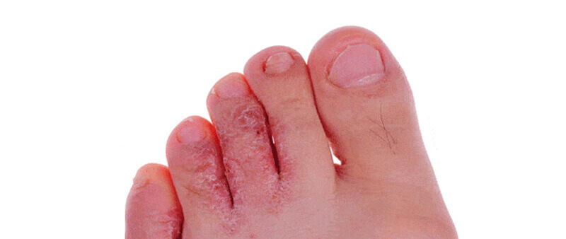 Poor footwear choice can cause more than foot pain, especially in summer