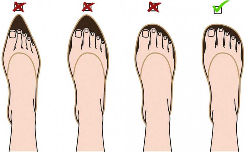 Overcrowded Toes: A Common Source of Foot Pain and Disorders